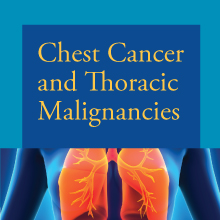 Internet CME: Chest Cancer and Thoracic Malignancies